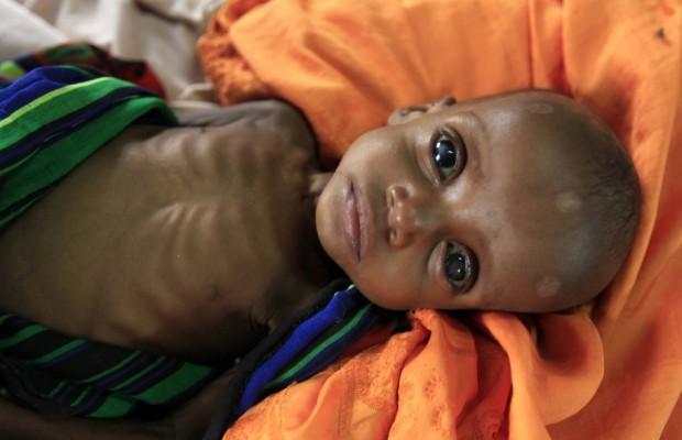 Αγνώστων στοιχείων σοβαρά υποσιτισμένο παιδί  Σομαλού  πρόσφυγα, σε νοσοκομείο των  Γιατρών Χωρίς Σύνορα.